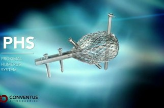 Conventus Orthopaedics Appoints Richard Mott to its Board of Directors