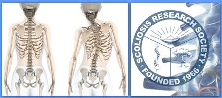 Todd J. Albert, MD, Named President of Scoliosis Research Society