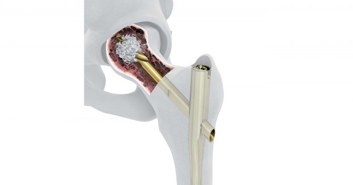 New System Designed to Enhance Implant Fixation for Hip Fracture Patients with Poor Bone Quality Launches in the U.S.