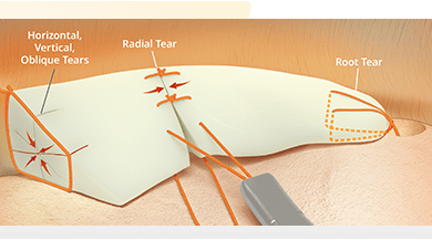 Photo of Use of Ceterix NovoStitch® Plus System for Repair of Horizontal Meniscus Tears Supported by Three New Studies