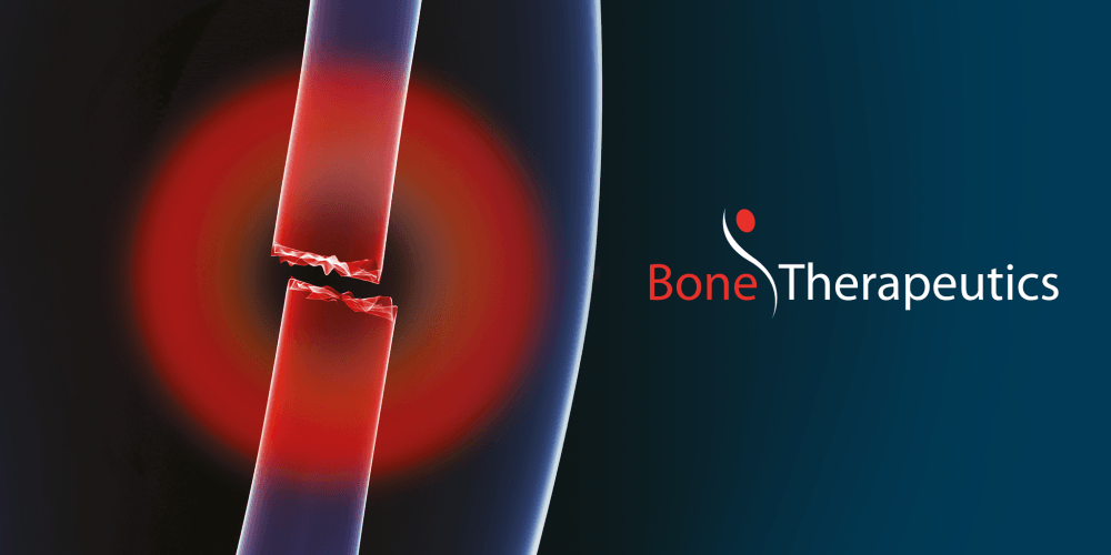 Bone Therapeutics SA : Business Update for Third Quarter 2017