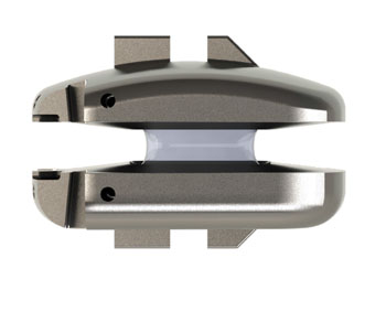 K2M Announces Completion of 300 RHINE™ Cervical Disc System Surgical Cases