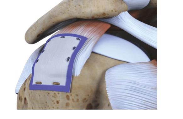 Rotation Medical Bioinductive Implant Promotes Consistent Rotator Cuff Healing, Mitigates Tear Progression