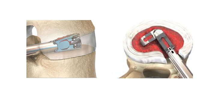Dr. Adam Lewis to Adopt EOI's FLXfit™ Articulated and Expandable Cages as His Treatment of Choice for MIS TLIF