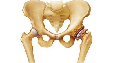 Photo of AAOS approves diagnostic and treatment criteria for osteoarthritis of the hip