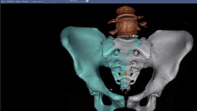 Photo of Hospital for Special Surgery Invests in Sectra Orthopaedic 3D Planning Software for Improved Surgical Outcomes