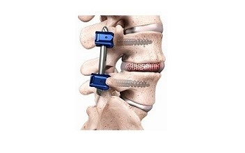 Photo of Spineology U.S. Clinical Trial for Interbody Fusion