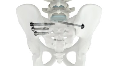 Photo of Medacta International Announces First U.S. Surgery Utilizing New M.U.S.T. SI Joint Screw System for Sacroiliac Joint Fusion