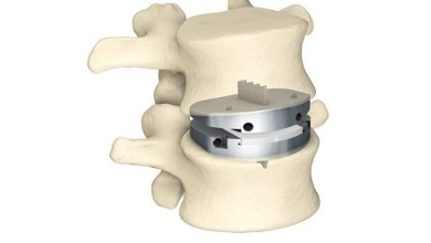 Photo of Centinel Spine Announces that UnitedHealthcare Will Now Cover prodisc L Anterior Lumbar Total Disc Replacement