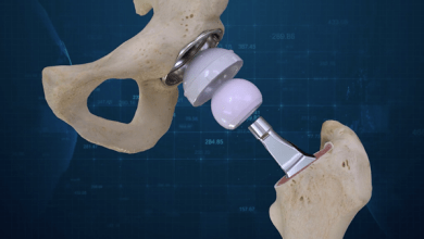 Photo of Conformis Announces the first 3D Total Hip Replacement Surgeries performed at JFK Medical Center in Florida