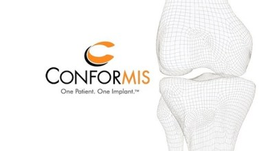 Photo of Conformis Reports Preliminary Fourth Quarter and Year-End 2018 Revenue Results