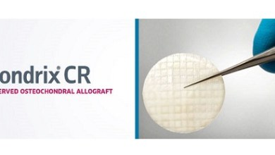 Photo of AlloSource Announces First Patient Enrolled In ProChondrix CR Cartilage Defect Study