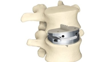 Photo of Updated NASS Position on Lumbar Artificial Disc Replacement Matches Centinel Spine's prodisc® L Indications