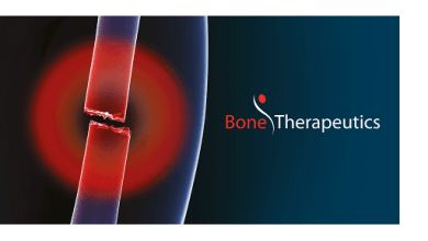 Photo of Bone Therapeutics Provides First Quarter 2019 Business Update