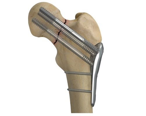 Smith & Nephew Launches the CONQUEST FN™ Femoral Neck Fracture