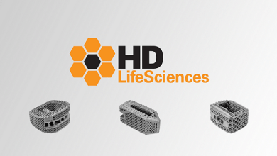 Photo of HD LifeSciences Announces Milestone of 1,500th Implant Used