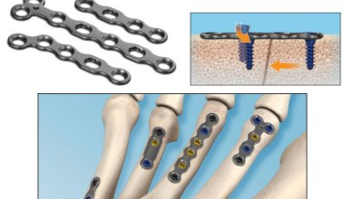 Photo of In2Bones Launches CoLink® Mini Plating System