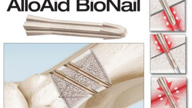 Photo of Introducing the New AlloAid BioNail Implant