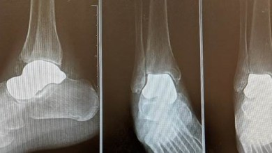 Photo of Orthopedic Foot and Ankle Surgeon Performs 3D Total Talus Replacement