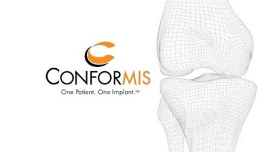 Photo of Conformis Achieves 100,000 Implant Milestone for Patient-Specific Knee Replacement Technology
