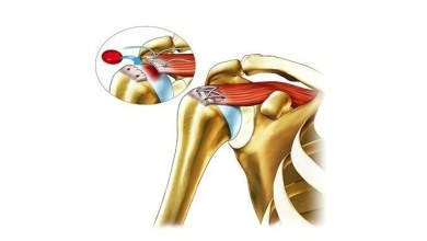 Photo of Ortho Regenerative Technologies Announces Positive Results from Pivotal Preclinical Study in Rotator Cuff Tear Repair