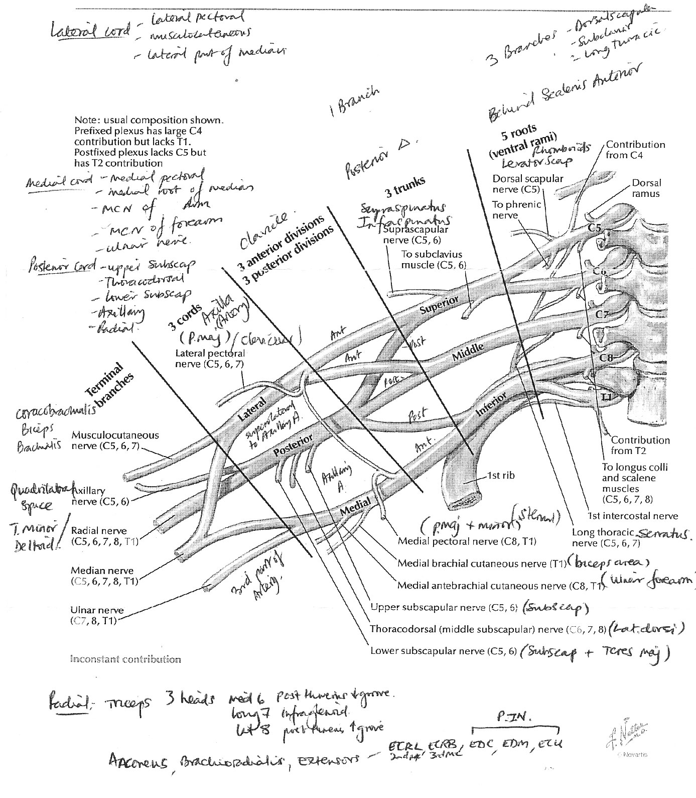 Brachial plexus Injury