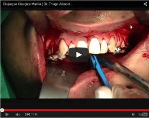 Impressionante cirurgia na Maxila: CENAS ALTAMENTE IMPACTANTES!