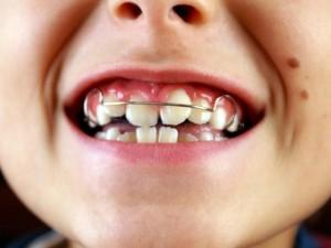 crianca-sorrindo-e-mostrando-o-aparelho-ortodontico-preso-aos-dentes-foto-nessli-orpmasshutterstockcom-0000000000011A4C