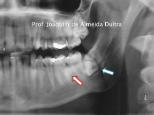 Osteoma em corpo mandbular3