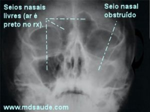 Sinusite+rx1 (1)