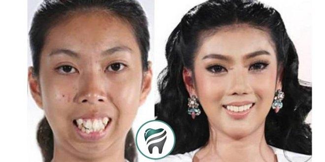 Uma Tailandesa, que nasceu sem queixo e com dentes para frente, se transforma! — VEJA O CASO