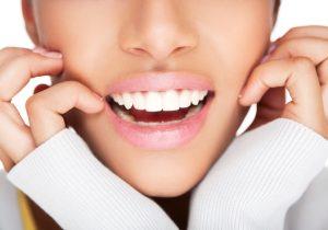 dantura perfecta aparat dentar