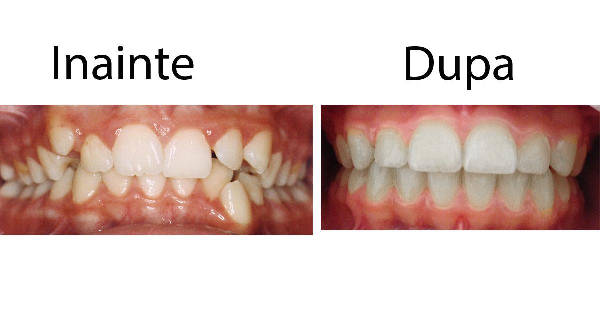Tratament de 2 ani, cu aparatul dentar fix Ortoclass