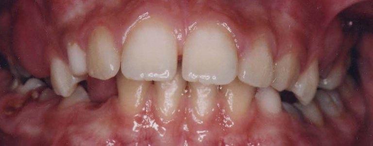 aparat dentar safir - fata - inainte