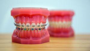 cabinet-ortoclass-dorobanti-model-aparat-dentar