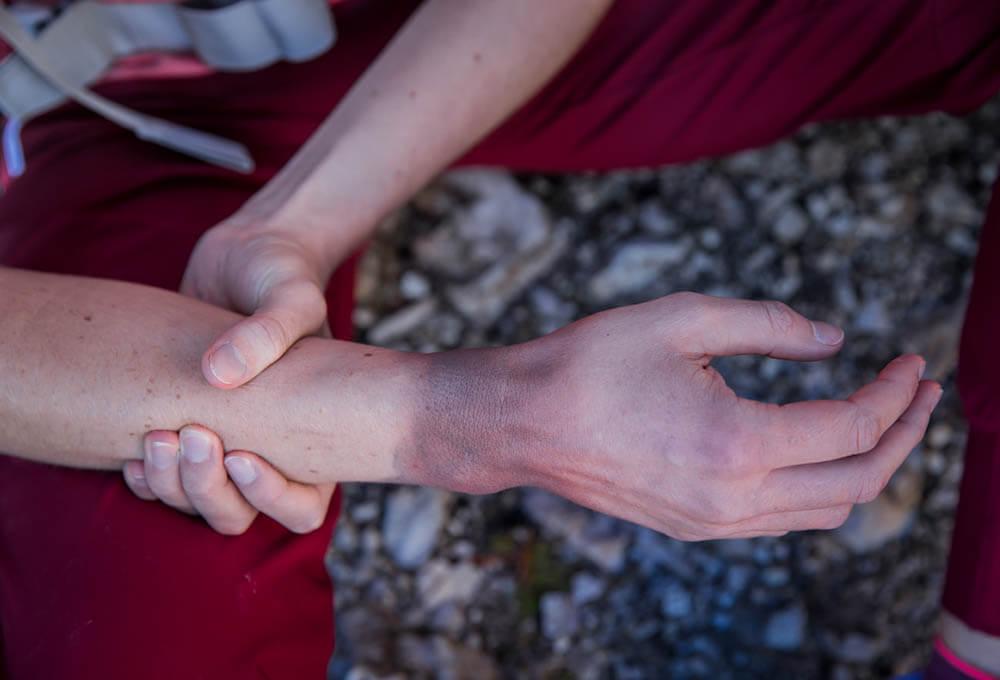 handgelenk gebrochen