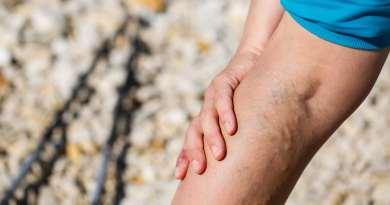 O que pode causar flebite?
