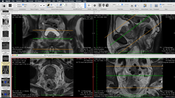 Osirix Dicom Viewer Osirix Md - MVlC