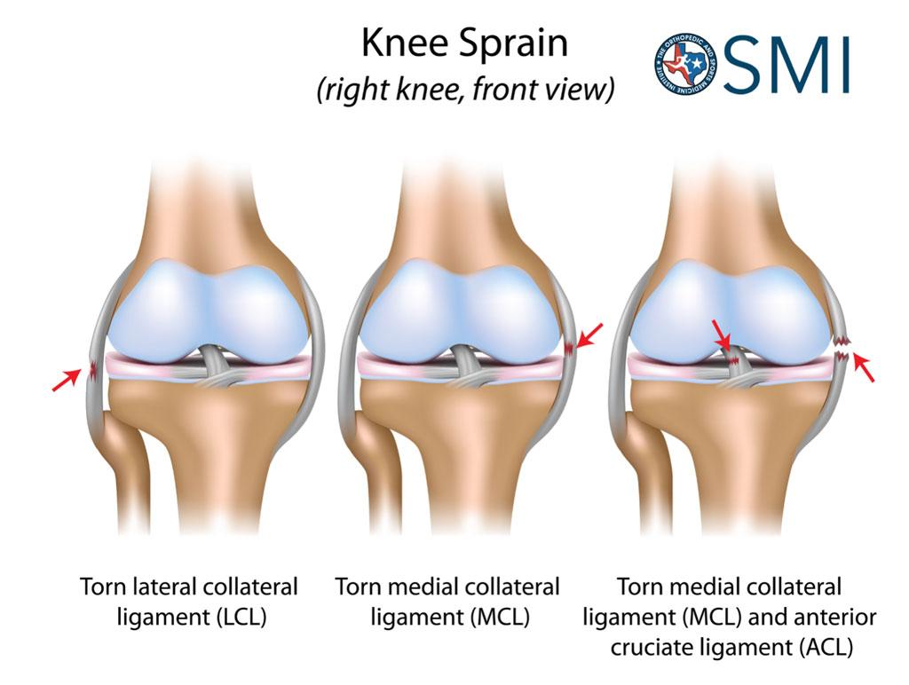 OSMIKneesprain The Orthopedic  Sports Medicine