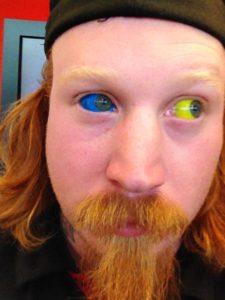 dudes-with-eyeball-tattoos-tell-us-what-its-like-having-eyeball-tattoos-body-image-1459975331