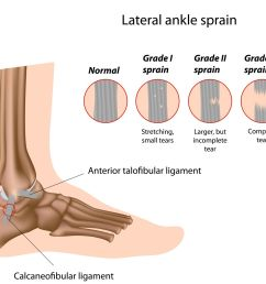 ankle sprain pure health osteopath clinic sprained ankle icon sprained ankle diagram [ 1496 x 1254 Pixel ]