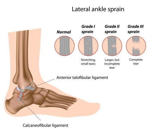 small resolution of ankle sprain pure health osteopath clinic sprained ankle icon sprained ankle diagram