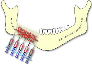 Clinical review of bone regenerative medicine and maxillomandibular reconstruction