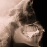 顎関節症に対するオステオパシー