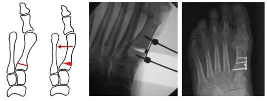 Σχηματική και ακτινολογική απεικόνιση οστεοτομίας