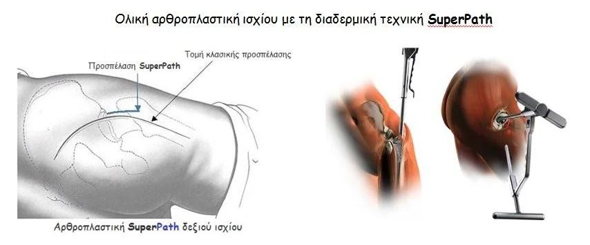 Διαδερμική Αρθροπλαστική SuperPath