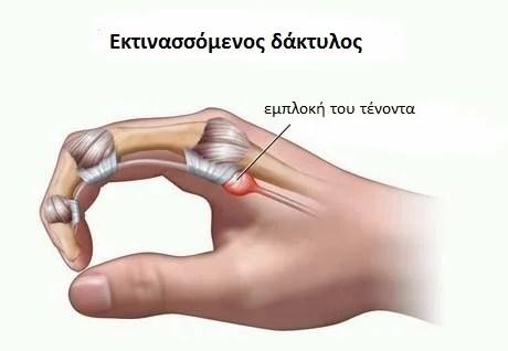 Εκτινασσόμενος δάκτυλος