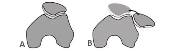 Χειρουργική αντιμετώπιση Εξαρθρήματος επιγονατίδας