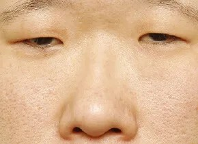 大きい鼻の悩み|大塚美容形成外科・歯科