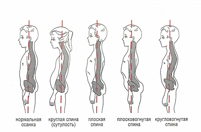 types of posture disorders